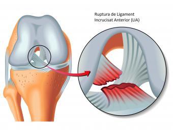 inflamație articulară după tratamentul leziunilor