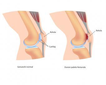 edemă la genunchi și durere; restricție de mișcare boala sistemului musculo-scheletic