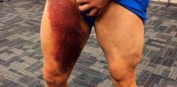 recuperare ruptura musculara coapsa)